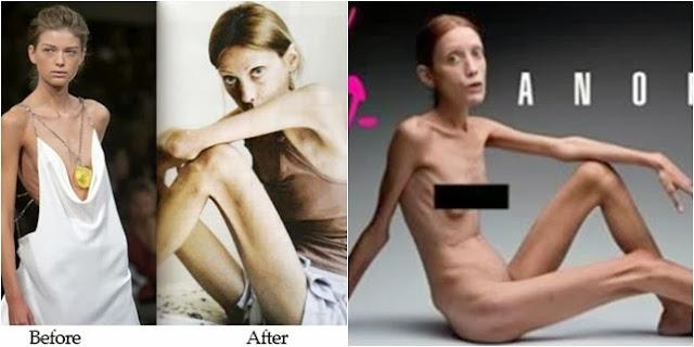 Anoreksia, Tubuh Kurus yang Mengerikan