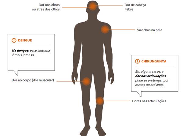 Dengue X Chikungunya. Sabe a diferença?