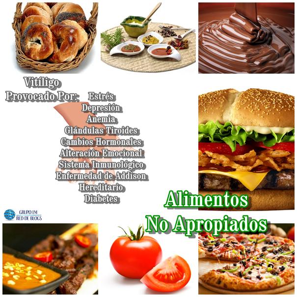 Alimentos No Apropiados Vitíligo