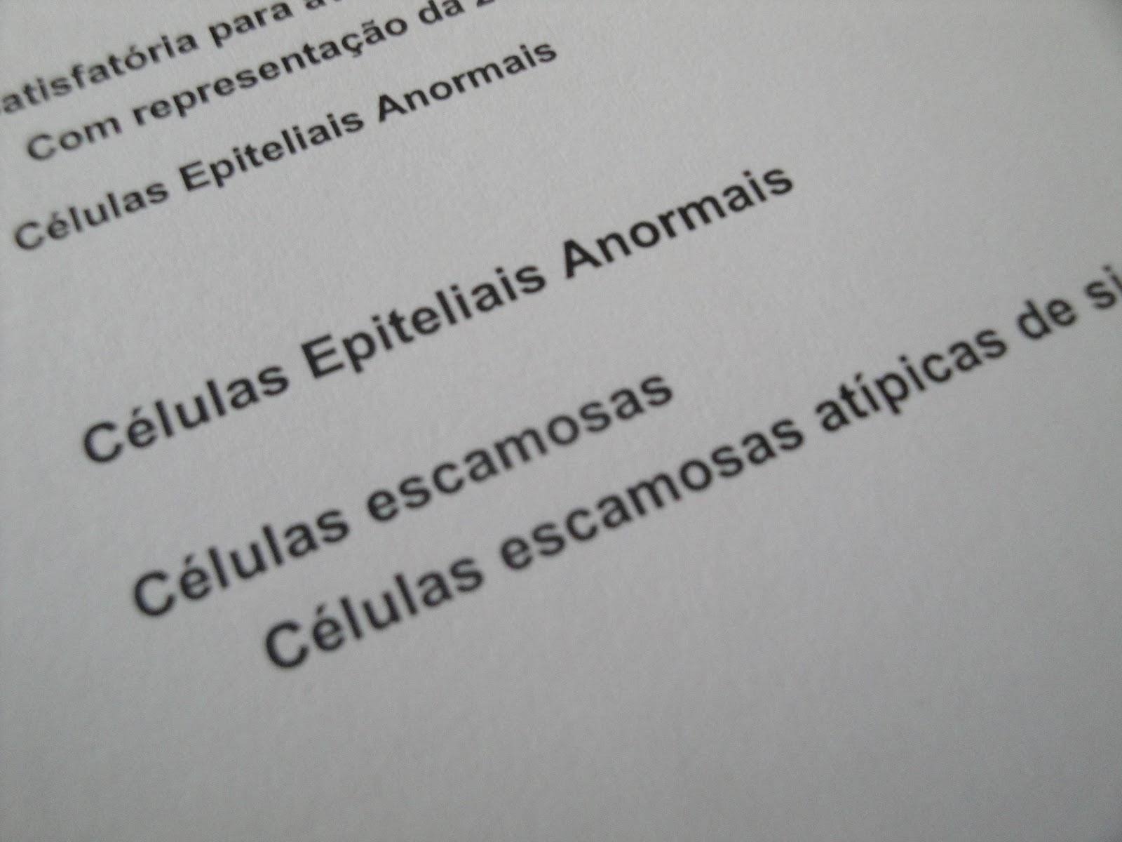 Exame de colpocitologia
