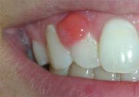 Infection in gums home remedy