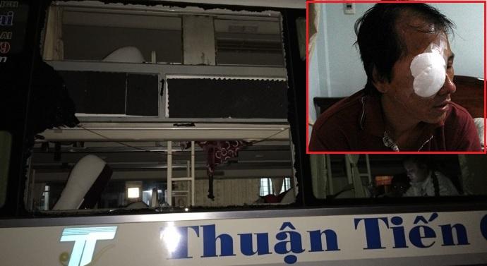 Bị ném đá, tài xế xe khách giường nằm Thuận Tiến Gia Lai tổn thương 34% sức khỏe