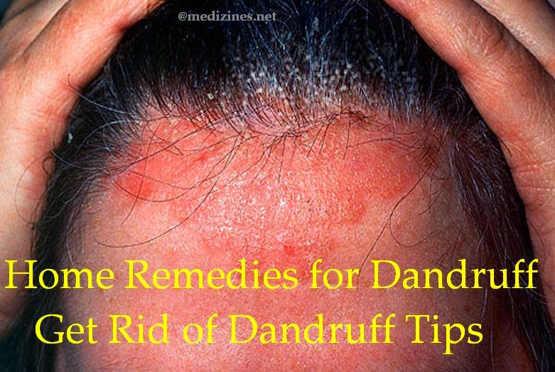 how to get dandruff out of your hair fast