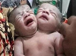 Heboh, Bayi Lahir Dua Kepala di Bangladesh