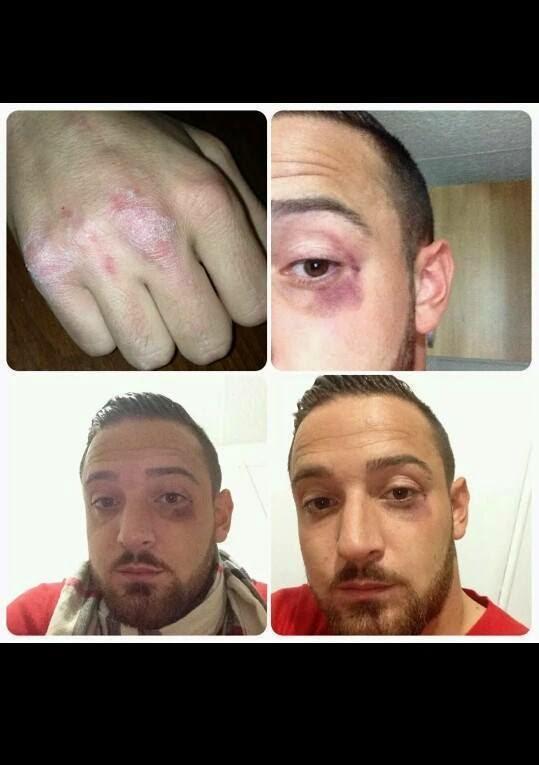 Deniz Naki volta para a Alemanha, depois de ser agredido por extremistas