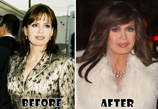 Marie Osmond Weight Loss Pictures: Before and After