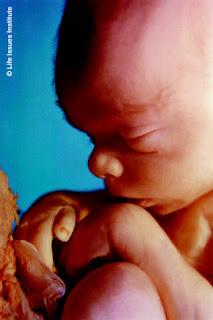 fetus/unborn baby at 20 weeks
