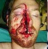 Wajah Paul Walker Setelah kecelakaan