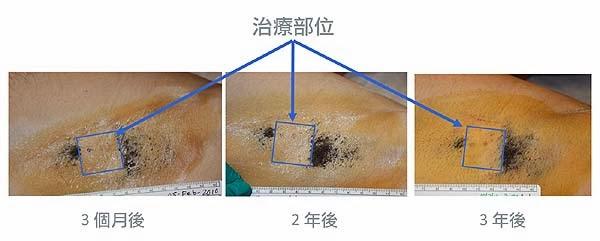 微波熱能(MiraDry)腋下多汗和狐臭治療