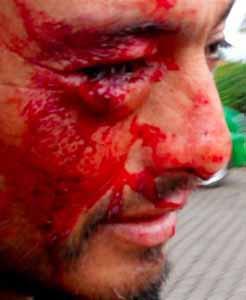 20 heridos y lesionados por allanamiento en Isla de Pascua- 4 diciembre 2010
