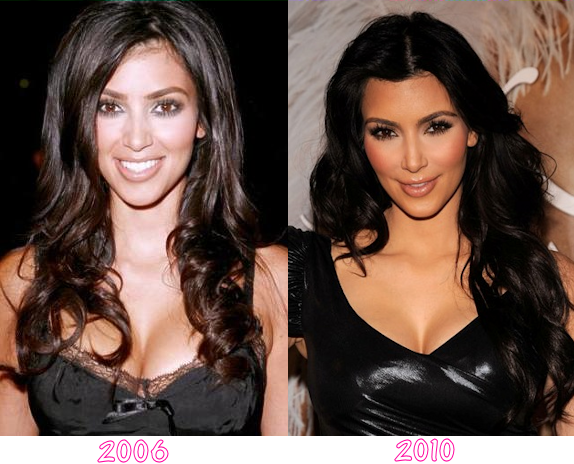 Star Plastic Surgery Before And After December 2012
