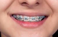 Bahaya Gigi Berkawat