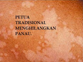 Petua, Petua Tradisional, PETUA TRADISIONAL MENGHILANGKAN PANAU.