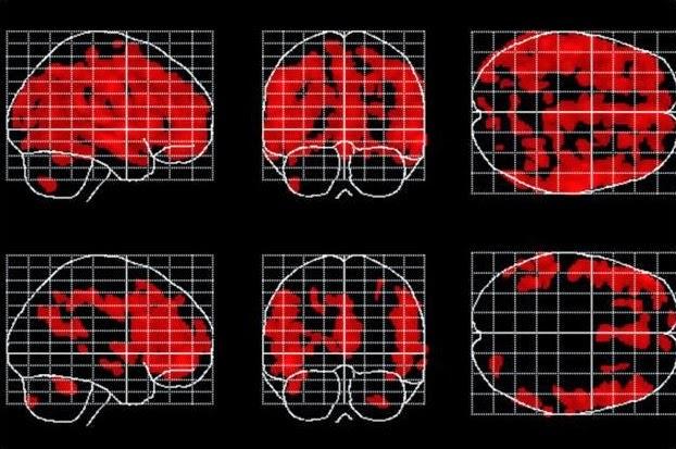 Ảnh não bộ qua máy chụp cộng hưởng từ độ phân giải cao