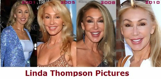 Linda Thompson before and after plastic surgery