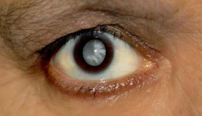 8 causes and symptoms of eye cataracts