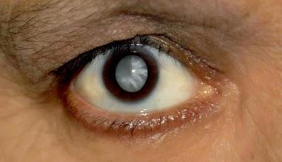 Faktor Penyebab Mata Katarak