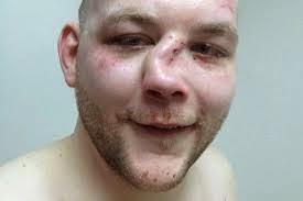 Brutales Herida de Peleas MMA
