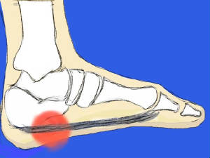 Center for Ankle and Foot Care Blogspot: Plantar fasciitis and ...