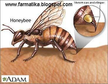 Pengobatan tersengat lebah