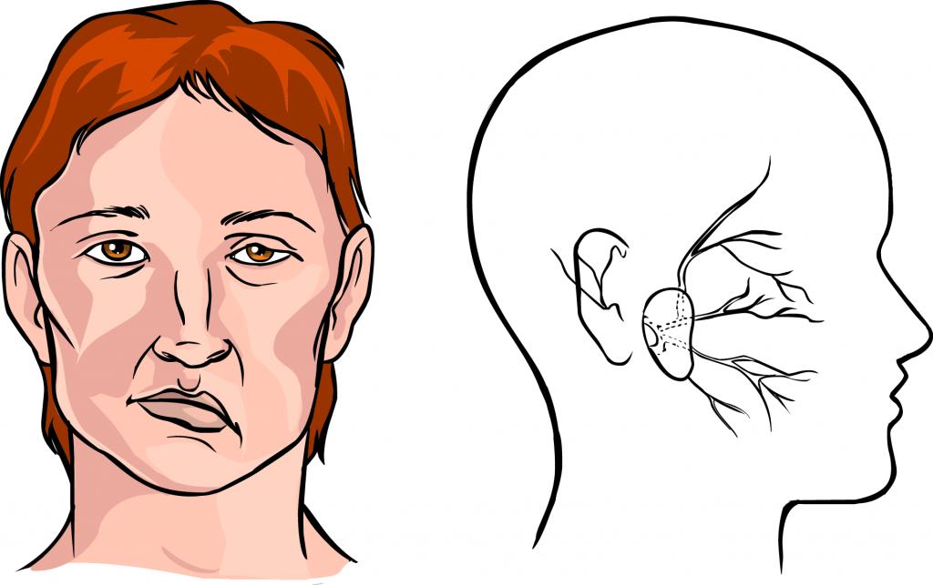 Bell's Palsy Symptoms