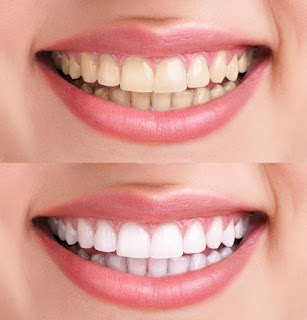 Teeth Whitening, the Plain Truth