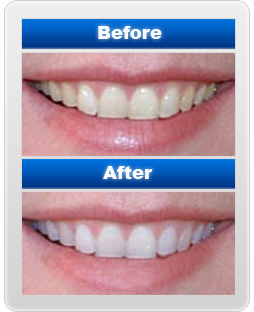 Azim Aris Koi Orang Temerloh Cara Memutihkan Gigi