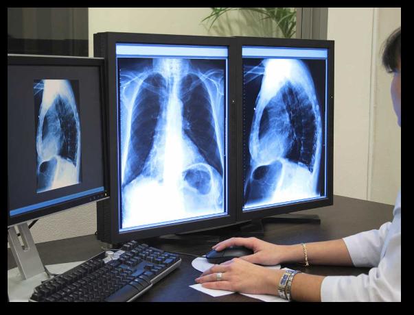 Avantajele, dezavantajele si precautiile radiografiei