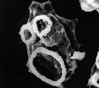 Naegleria fowleri - El mundo de Hydra