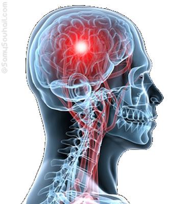 تحذير: أسوأ 10 عادات تدمر المخ والدماغ..هام جدا
