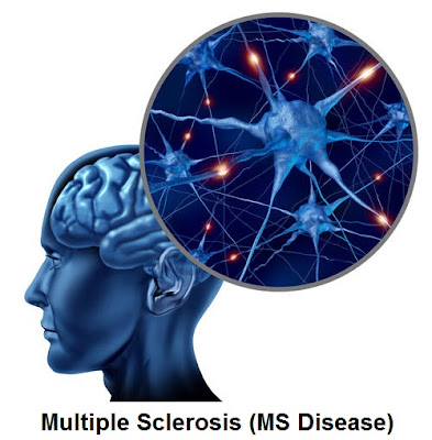 Multiple Sclerosis (MS Disease): Signs And Symptoms, Diagnosis And Treatment