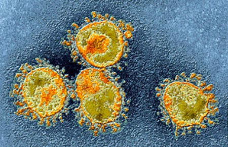 DOH: Pinay nurse confirmed afflicted with MERS-CoV