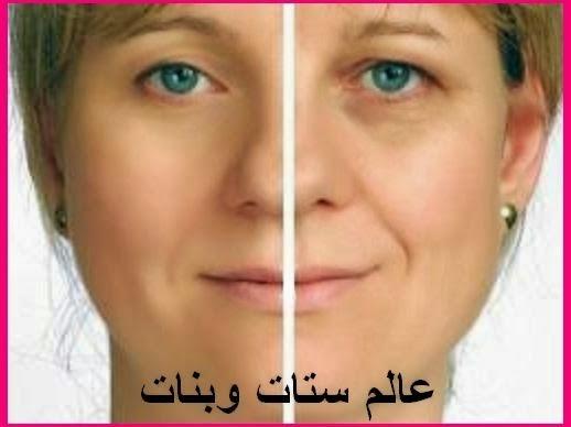 البوتوكس الكولاجين و الفيلر حل اكيد لازالة تجاعيد الوجه تجاعيد العين تجاعيد اليدين تجاعيد البشرة