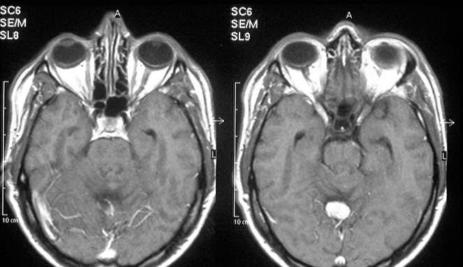 Lima Penyakit Super Langka yang Wajib di Perhatikan