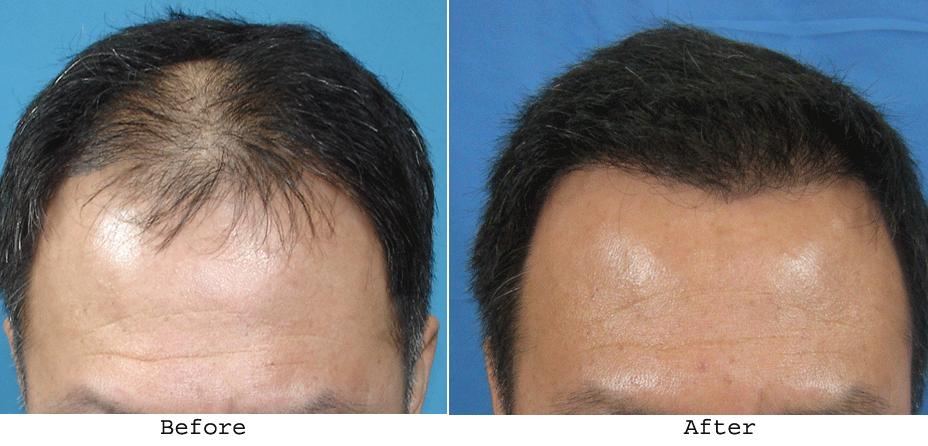 15 hair transplant lucknow clinics view cost clinicspots hair transplant in lucknow pmusecretfo Image collections