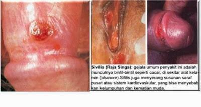 Obat Untuk Penyakit Sipilis