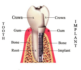 Tooth V/S Implant
