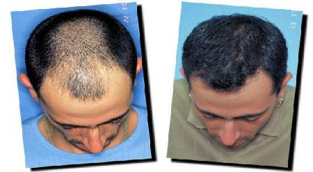 Cost Of Hairtransplant Surgery