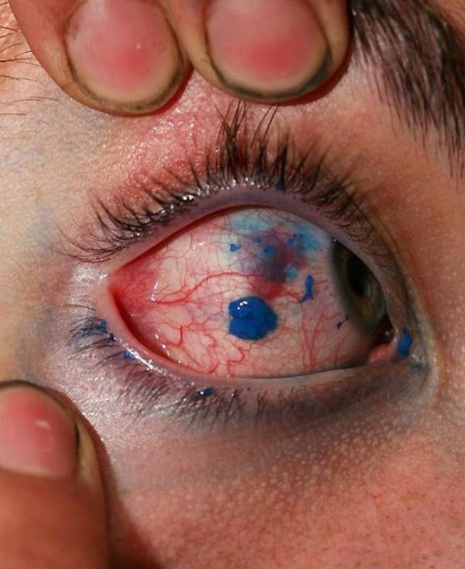 Procedimento: Tatuagens do globo ocular