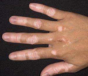 vitiligo manchas blancas