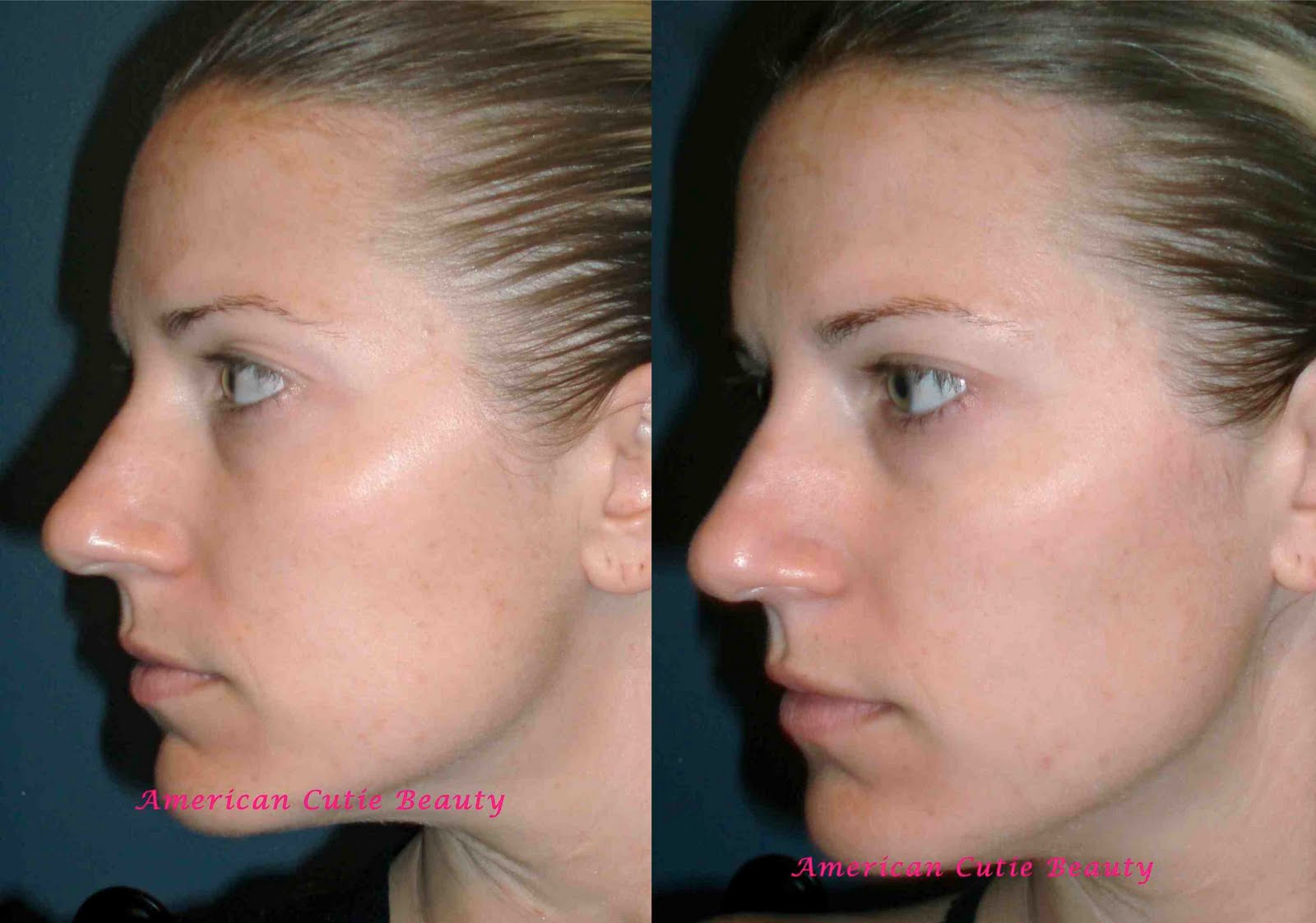 Nerium AD Age-Defying Day and