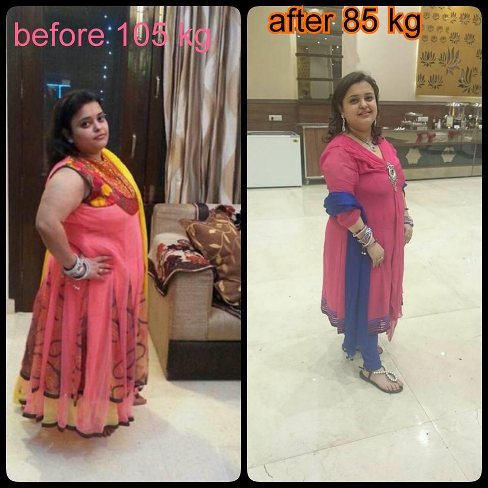 Weight loss surgery asheville nc