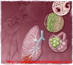 Cara mengobati paru paru basah