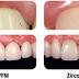 Zirconium, The New Leader in Dentistry