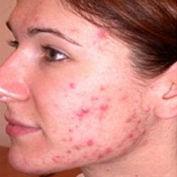 9 Simple Tips on How to Prevent Pimples