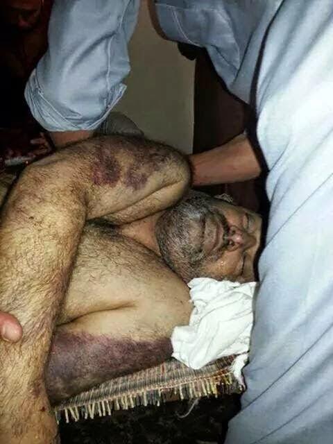 رد: بالصور / الإرهاب الشيعي تفجير وتعذيب وحرق وسلخ وقطع رؤوس