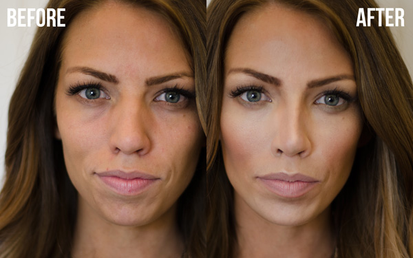 Nose size vs Weightloss - Beauty, Health and Wellness - Forums and ...