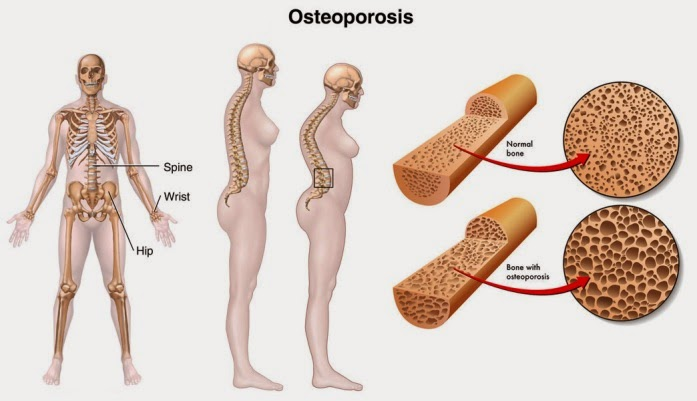 OESTEOPOROSIS SOLUTION