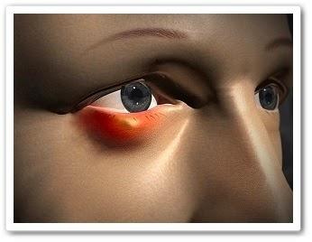 онлайн видео урок Ячмень как лечить