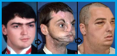 Face Transplant Operation in University of Maryland Medical Center
